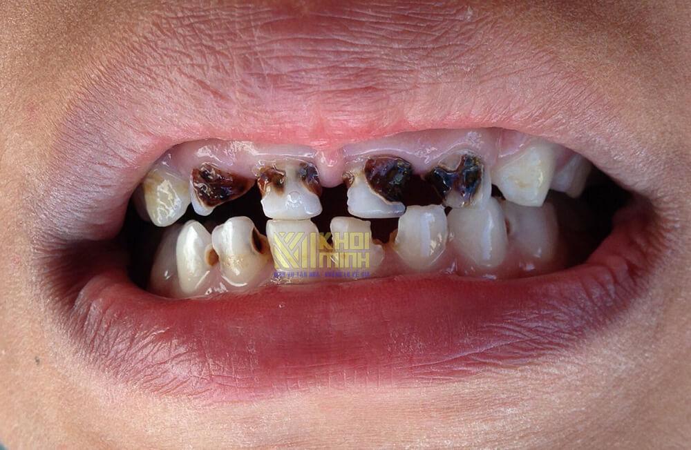 Sâu răng khi ăn nhiều trái cây sấy khô